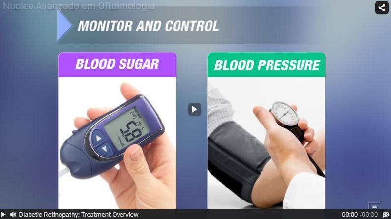 Vídeos de Retinopatia Diabética